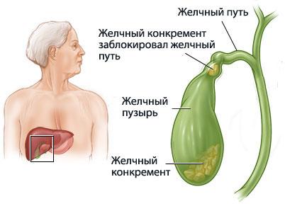 Позвоночная грыжа грудного отдела как лечить в домашних условиях
